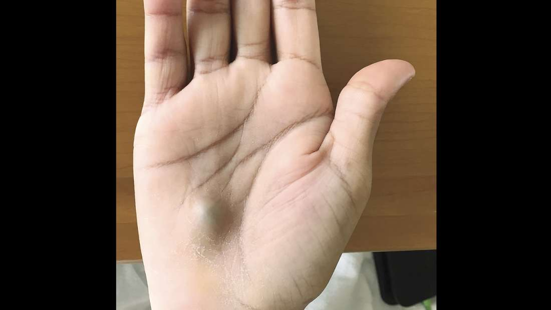 Canada guy finds bulging lump on his hand after dentist trip