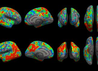 New imaging tool helps scientists see extent of Alzheimer's early damage
