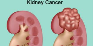 Study: New first-line treatment option for metastatic kidney cancer