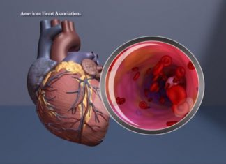 Study: New abdominal aortic aneurysm genes identified, could help pinpoint those at risk